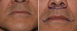 Male Subnasal Lip Lift and Corner of the Mouth Lifts drawings Dr Barry Eppley Indianapolis