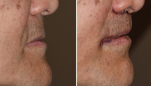 Male Subnasal Lip Lift and Corner of the Mouth Lifts immediate result Dr Barry Epley Indianapolis