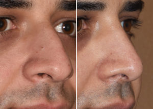 middle-eastern-male-rhinoplasty-results-oblique-view-dr-barry-eppley-indianapolis