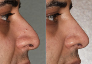 middle-eastern-male-rhinoplasty-resulys-side-view