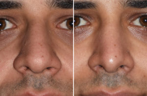 middle-eastern-male-rhinoplasty-result-front-view-dr-barry-eppley-indianapolis