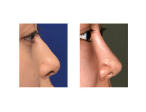 nasal-implant-rhinoplasty-result-side-view-dr-barry-eppley-indianapolis
