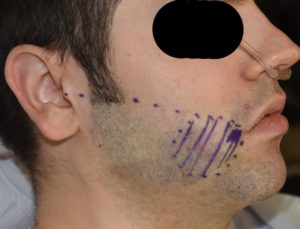 Perioral Mound Liposuction markings Dr Barry Eppley Indianapolis