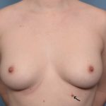 supernumerary-nipple-dr-barry-eppley-indianapolis