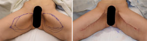 Vertical Inner Thigh Lifts immediate results both legs Dr Barry Eppley Indianapolis plastic surgeon