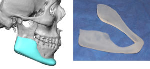 male custom jawline implant design and actual implant Dr Barry Eppley Indianapolis