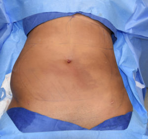 Abdominal and Flank Liposuction one treated side only Dr Barry Eppley Indianapolis