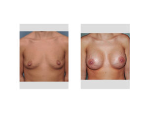 Breast Implants and Stretch Marks result front view Dr Barry Eppley Indianapolis