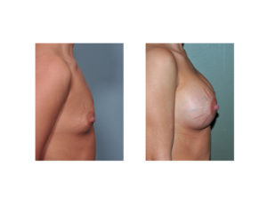 Breast Implants and Stretch Marks result side view Dr Barry Eppley Indianapolis