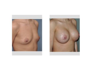 Breast Implants and Stretch marks result oblique view Dr Barry Eppley Indianapolis