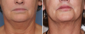 CA Neck Liposuction result front view