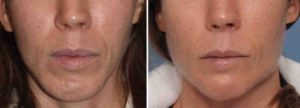 Chin and Jaw Angle Reshaping result front view Dr Barry Eppley Indianapolis