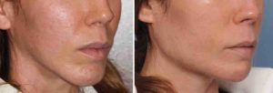 Chin and Jaw Angle Reshaping result oblique view Dr Barry Eppley Indianapolis