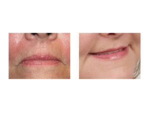 Corner of Mouth Lift result Indianapolis Dr Barry Eppley