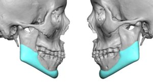 Custom Jawline Implant foir Jawline Reconstruction after Jawline Reduction side view Dr Barry Eppley Indianapolis