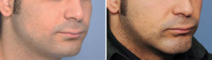 Custom Square Chin Implant result oblique view Dr Barry Eppley Indianapolis