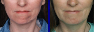 Dermal Fat Graft Chin Reconstruction result front view Dr Barry Eppley Indianapolis