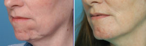 Dermal-Fat Graft Chin reconstruction result oblique view Dr Barry Eppley Indianapolis