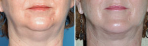 Double Chin Correction result front view Dr Barry Eppley Indianapolis