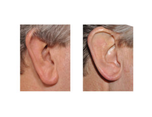 Earlobe Reduction Surgery Dr Barry Eppley Indianapolis