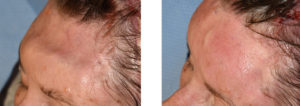 Fat Injections to Forehead Craniotomy Defect left oblique view Dr Barry Eppley Indianapolis