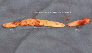 Inferior Border Ja Shave bone specimen Dr Barry Eppley indianapolis