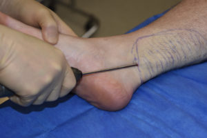 Inner Ankle Liposuction Dr Barry Eppley Indianapolis