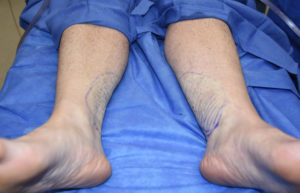 Inner Ankle Liposuction result Dr Barry Eppley Indianapolis