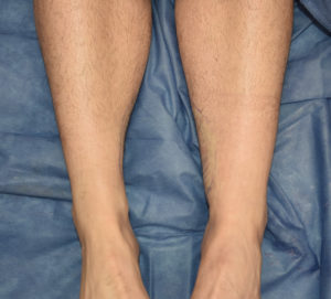 Inner Ankle Liposuction result front view Dr Barry Eppley Indianapolis