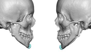 Jawline Deformity after Jaw Angle Amputation