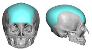 Large Custom Skull Implant design Dr Barry Eppley Indianapolis