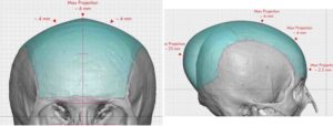 Large Custom Skull Implant dimensions Dr Barry Eppley Indianapolis