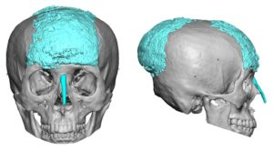 Large PMMA Skull Augmentation 3D CT images