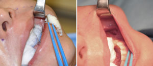 Left Jaw Angle Dermal Graft Implant for Asymmetry Dr Barry Eppley Indianapolis