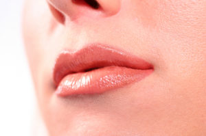 Lip Augmentation Dr Barry Eppley Indianpolis