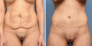 MO Tummy Tuck result front view