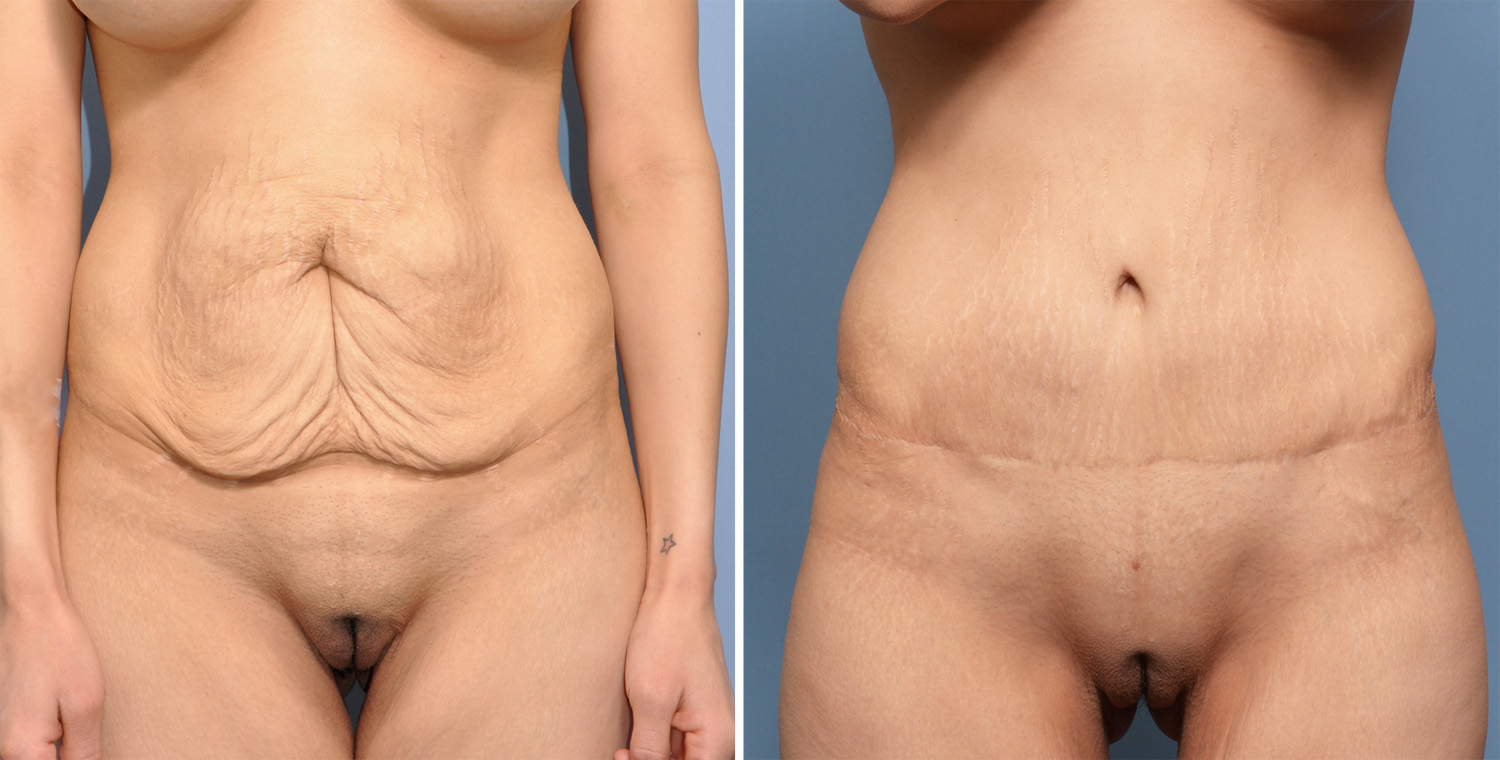 How Soon Can You Have Sex After A Tummy Tuck