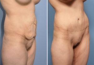 MO Tummy Tuck result oblique view