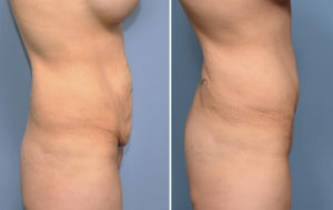 MO Tummy Tuck result side view