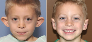 Male Child Otoplasty result front view Dr. Batrry Eppley Indianapolis