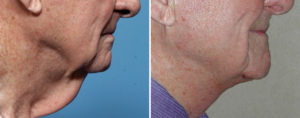 Older Male Direct Necklift result Dr Barry Eppley Indianapolis