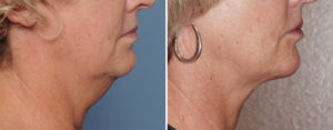 Older Neck Liposuction results side view Dr Barry Eppley Indianapolis