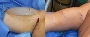 Right Bicep Implant result intraop Dr Barry Eppley Indianapolis