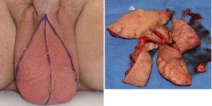 Scrotal Skin Removal