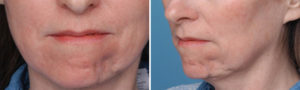 Soft Tissue Deformity of Chin