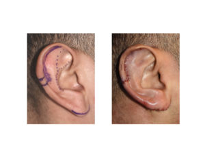 Vertical Ear Reduction result intraop Dr Barry Eppley Indianapolis