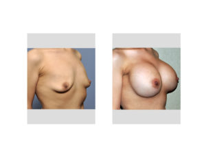 Weight Loss Breast Augmentation result right oblique view Dr Barry Eppley Indianapolis