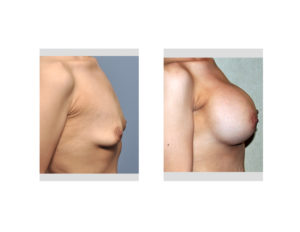 Weight Loss Breast Augmentation result side view Dr Barry Eppley Indianapolis