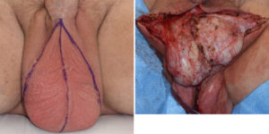 testicular dissection in scrotal reduction Dr Barry Eppley Indianapolis