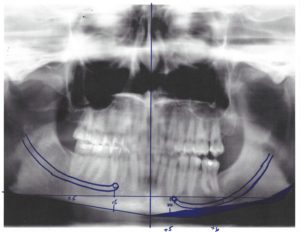 x-ray for Inferior Border Jawline Shave Dr Barry Eppley Indianapolis